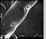 Fig. 2(B): Scanning electron micrograph of the surface of a hyphae of the plant pathogen Rhizoctonia solani after mycoparasitic Trichoderma hyphae were removed.